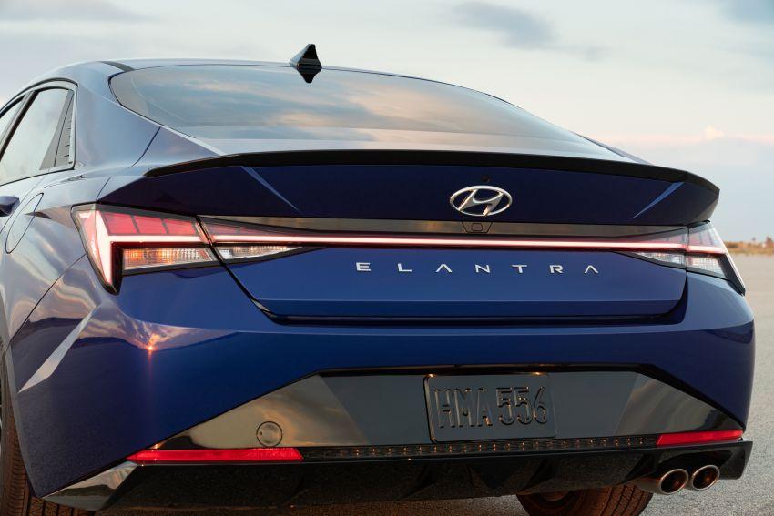 2021 Hyundai Elantra N Line – 1.6T, 201 hp, 264 Nm! Image #1160260